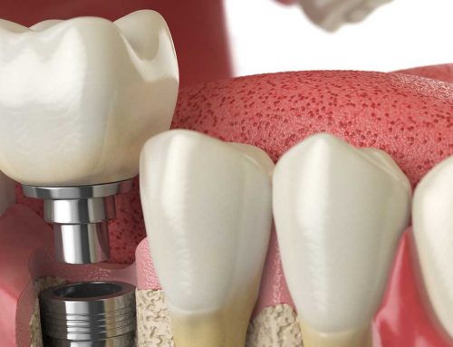 Are Dental Implants Always the Best Option?