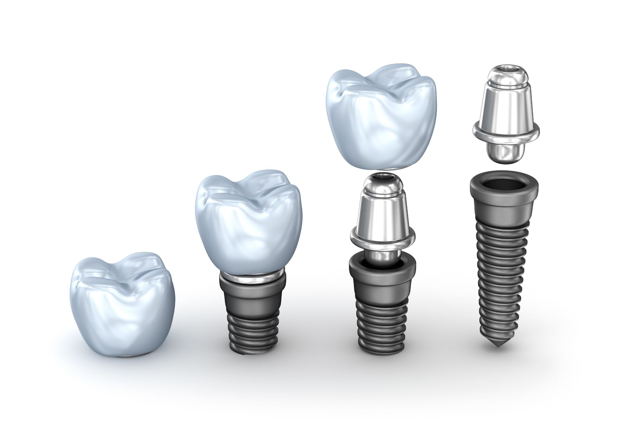 Dental implants replace the need for costly ongoing dental work