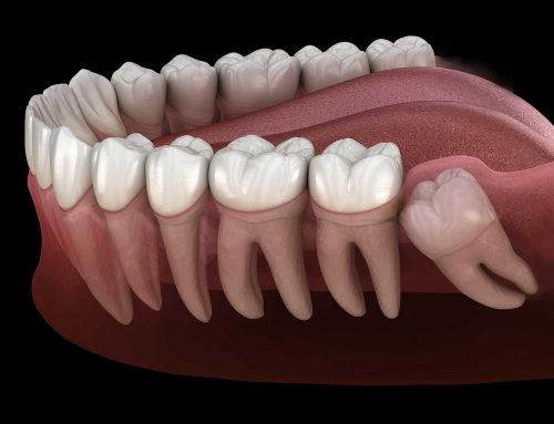 What Are Impacted Wisdom Teeth and How Do We Fix Them?